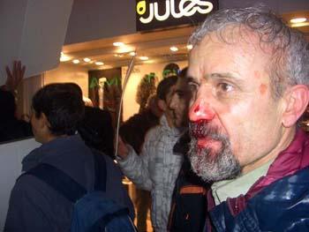 متاسفانه در تهاجم چماقداران فرقه تروریست مجاهدین که مستقیما از اووروسورواز مقر فرماندهی مریم رجوی دستور می گرفتند، آقای محمد کرمی به شدت زخمی شد.