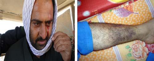 خانواده های مجروح در اشرف
