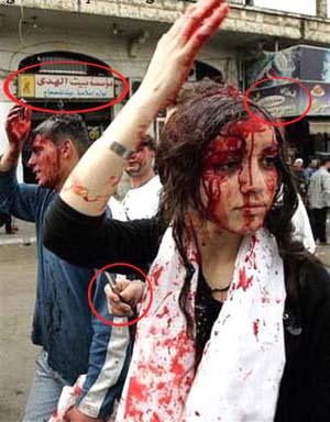 عکس یاد شده تصویری معروف از یک دختر لبنانی در حال قمه زنی است که از چند سال پیش در سایت های شیعی و ضد شیعی بازتاب گسترده ای داشته است.